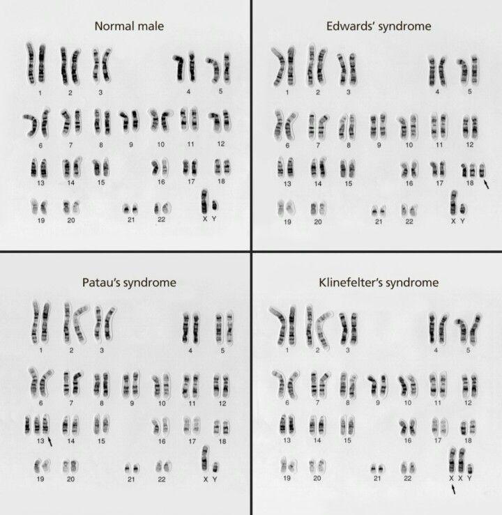 Karotype Information Genetic Disorders Teaching Biology Genetic Counseling Human Genome
