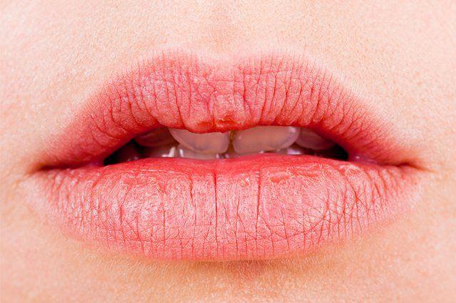 Cure os lábios rachados com fita durex - http://comosefaz.eu/cure-os-labios-rachados-com-fita-durex/