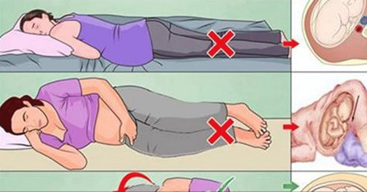 When should you sleep on your side during pregnancy