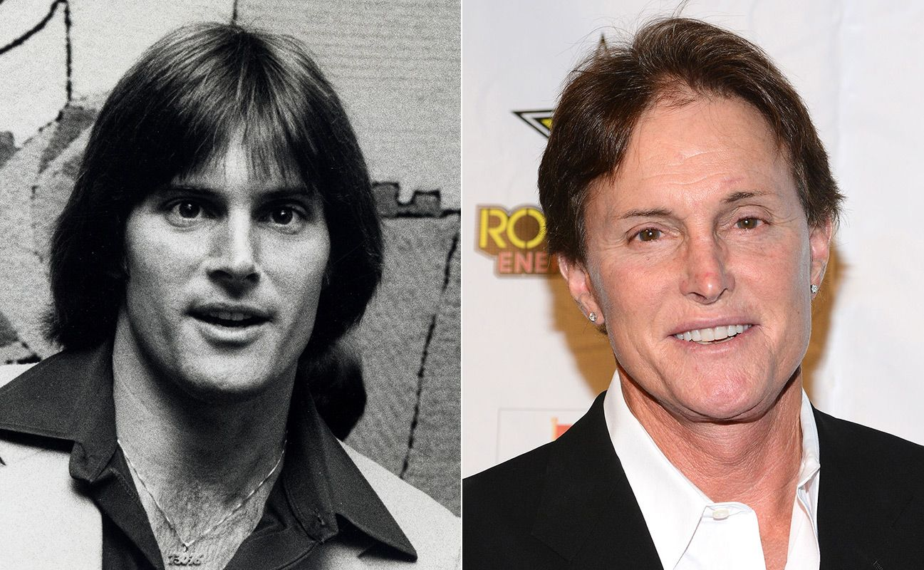 bruce jenner before surgery | bad plastic surgery: celebrity