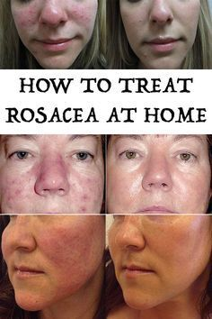 How To Treat Rosacea At Home Rosacea Acne Treatment How To