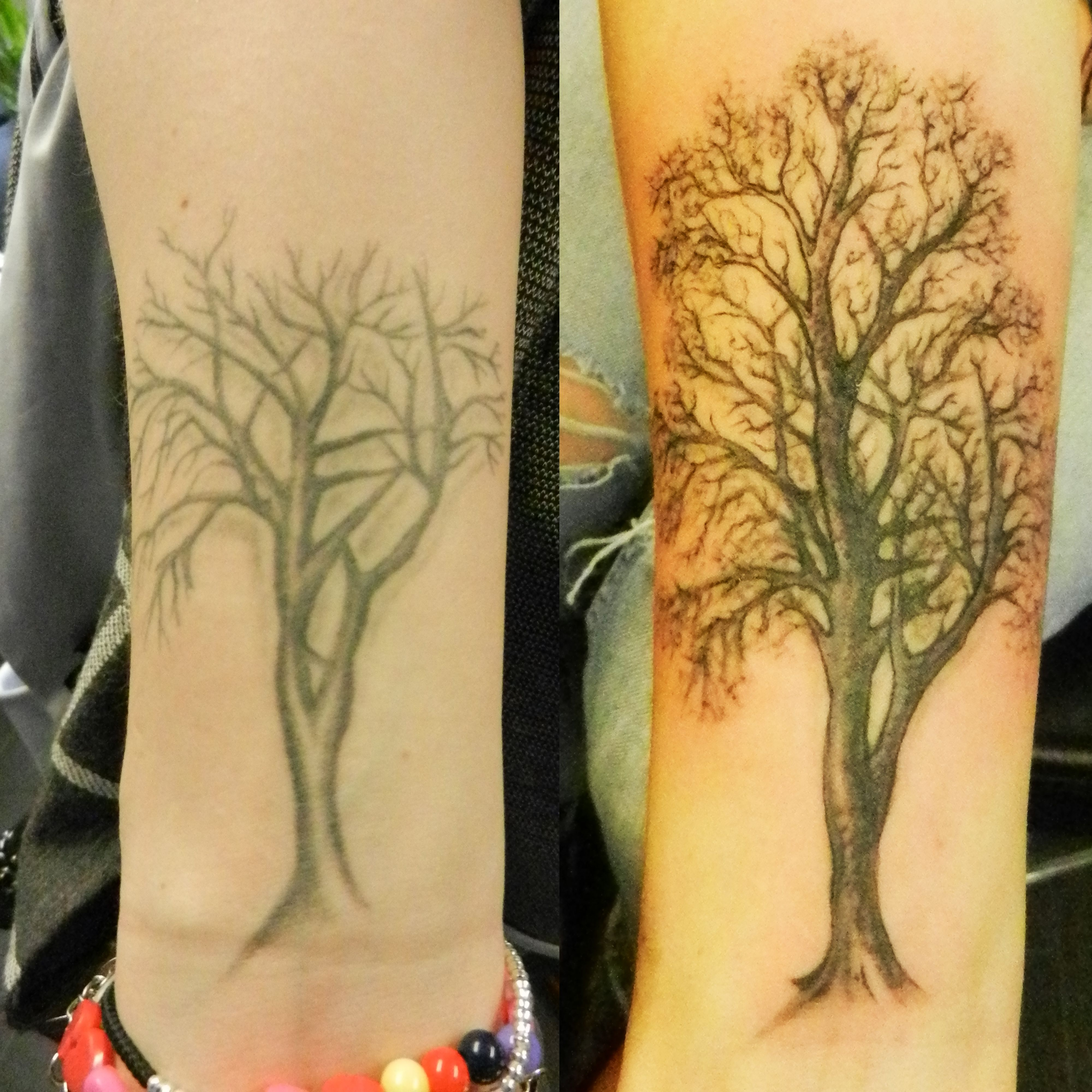 Tattoo Removal Cornwall