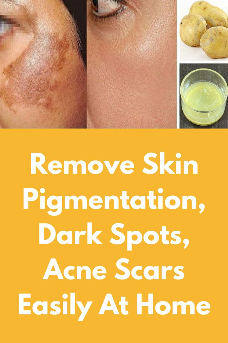 1b7d128853b83a2cf2d997e777ff6563 - How To Get Rid Of Acne Scars And Hyperpigmentation Naturally