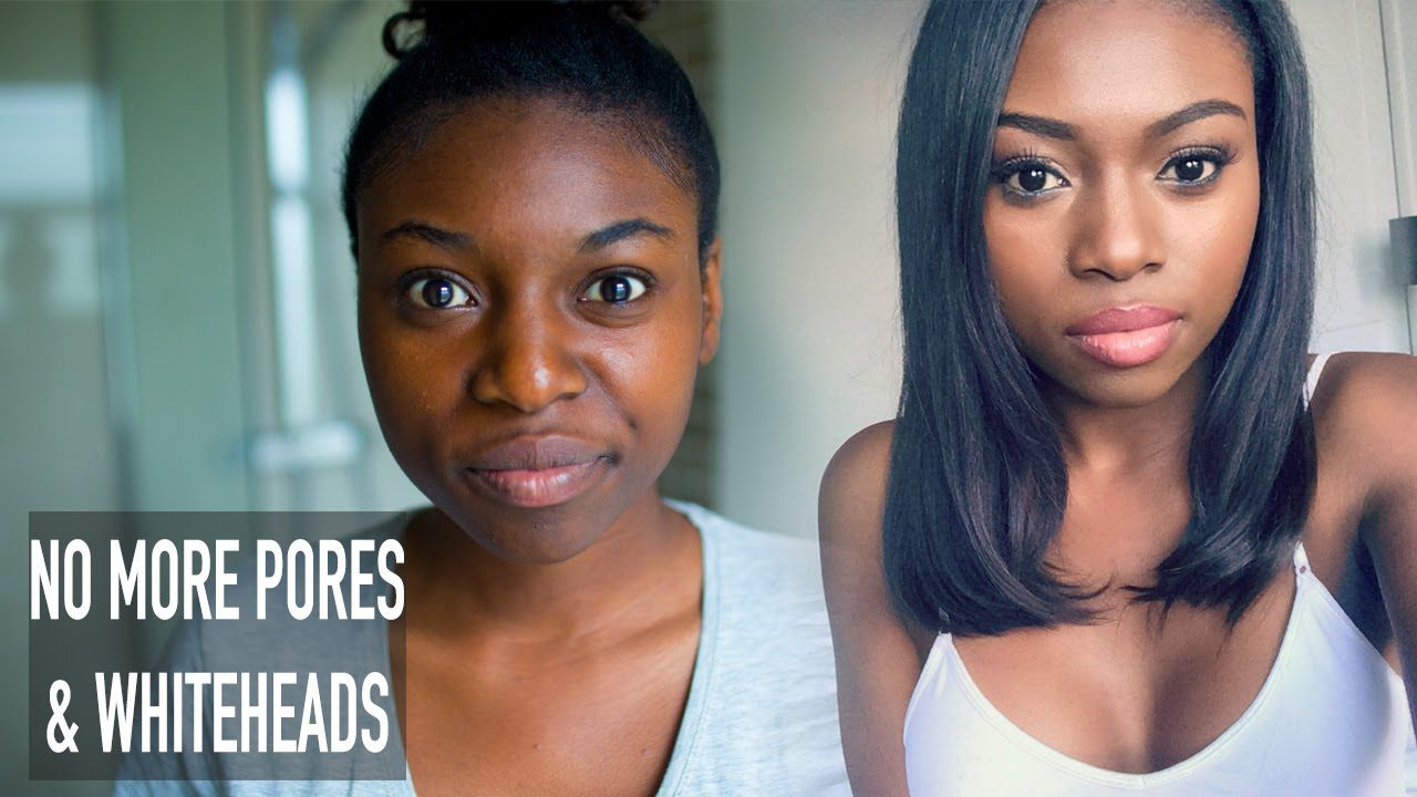 HOW I CLEARED MY SKIN & GOT RID OF LARGE PORES WHITEHEADS