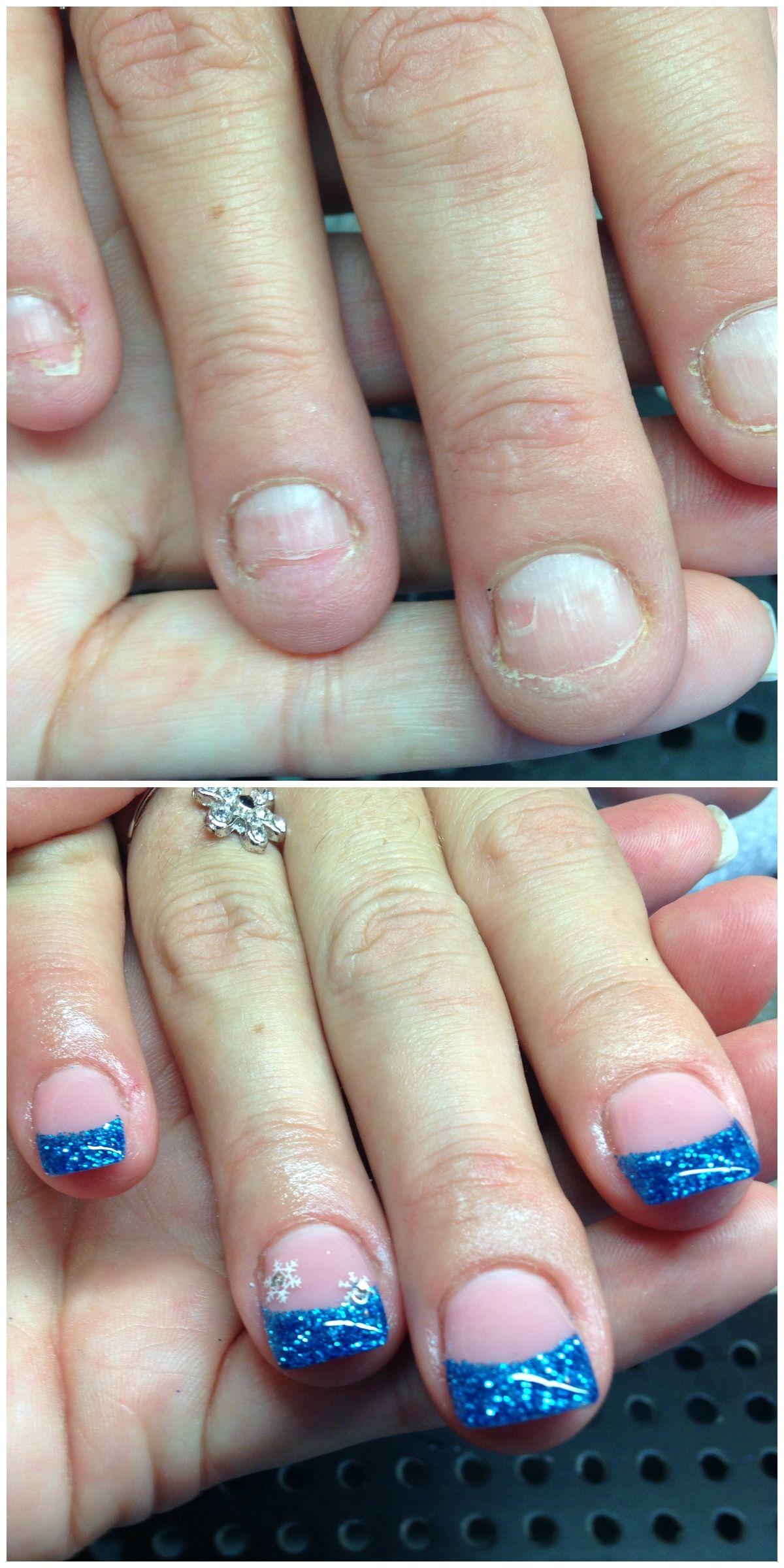 no more nail biting! <3 | Nails Before and after | Pinterest
