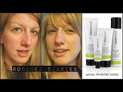 Mary Kay Clear Proof Review Rosacea Diaries Rosacea Skin Care Mary Kay Consultant Mary Kay