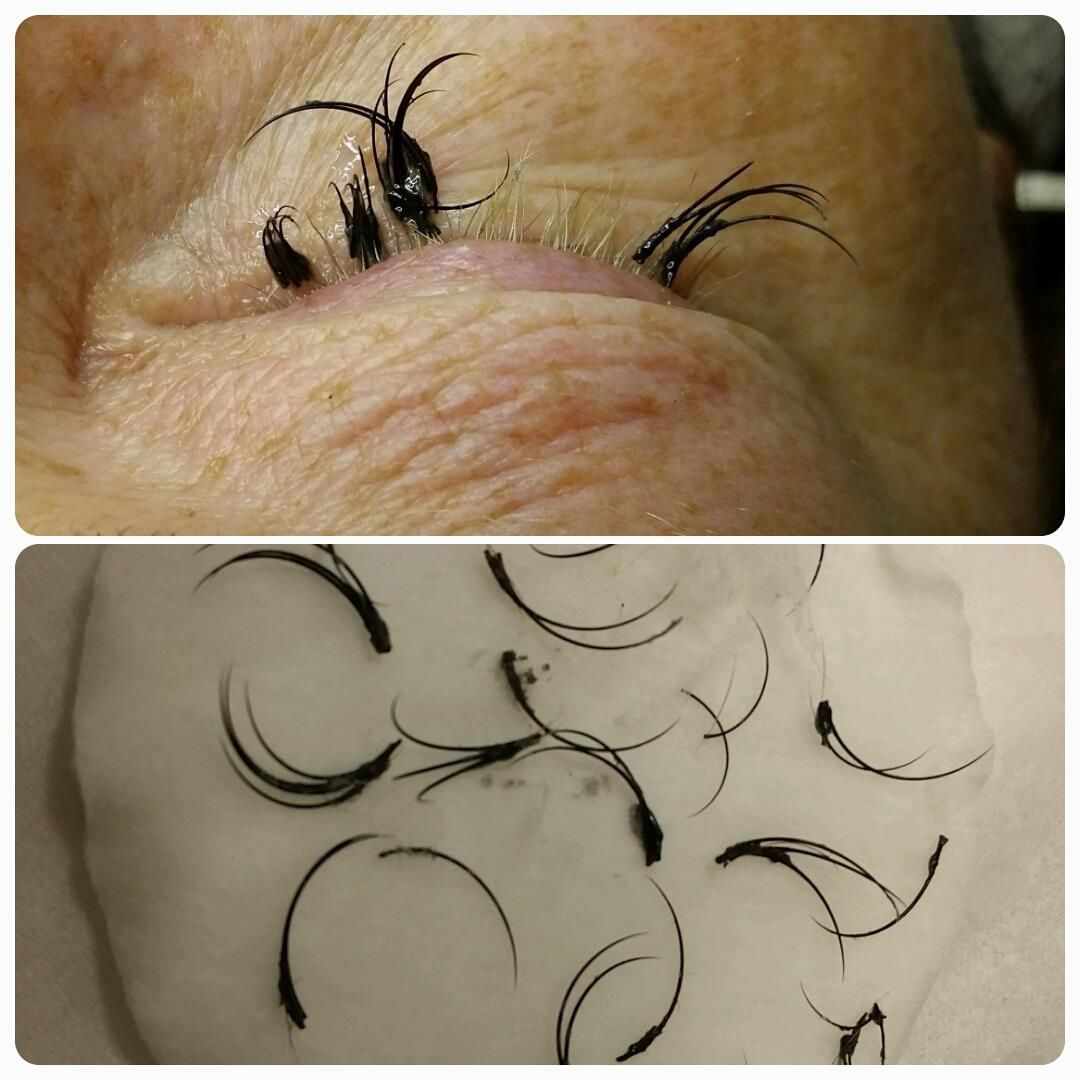 Pin on Negative reactions to lashes