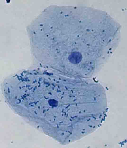 human cheek cell (methylene blue stained wet mount)