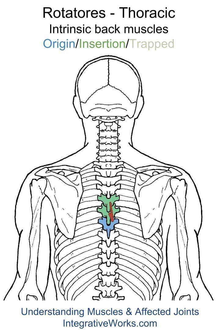 Understanding Trigger Points - sharp pain between the shoulder ...