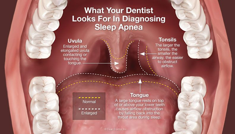 sleep apnea general health에 대한 이미지 검색결과