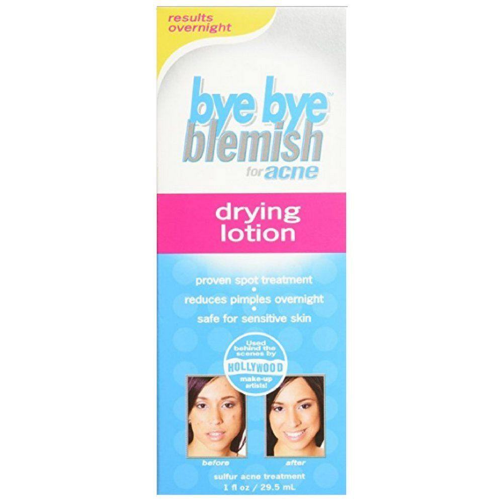 Bye Bye Blemish Drying Lotion For Acne 1 Ounce This Is An