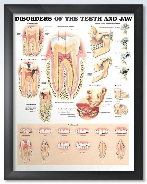 Disorders Of The Teeth And Jaw 20x26 Dental Dental Hygiene And
