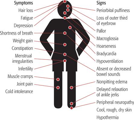 Thyroid Nodules Symptoms Thyroid Disease Symptoms