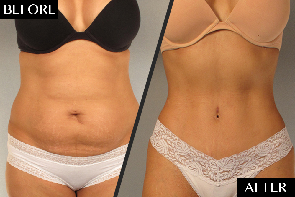 A Plastic Surgeon's Secret to Dramatic Tummy Tuck