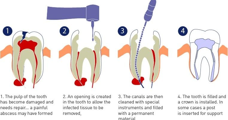 Root canal is a best procedure to repair infected teeth.IN