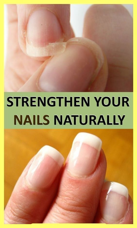 Natural Treatments To Strengthen Your Nails - Heal