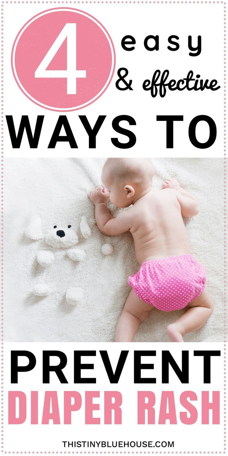 4 Simple Hacks To Prevent Diaper Rash - This Tiny Blue House