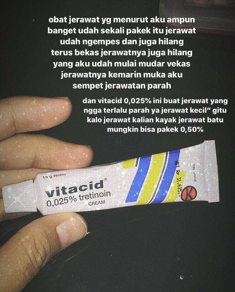 Review Cream Natasha Untuk Jerawat