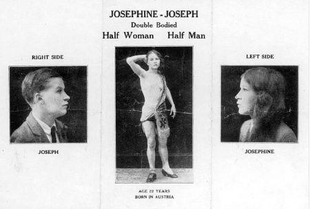 True hermaphrodite humans