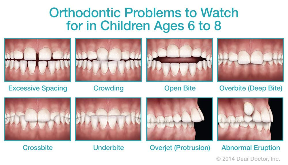 Teeth that are noticeably out of alignment can make a