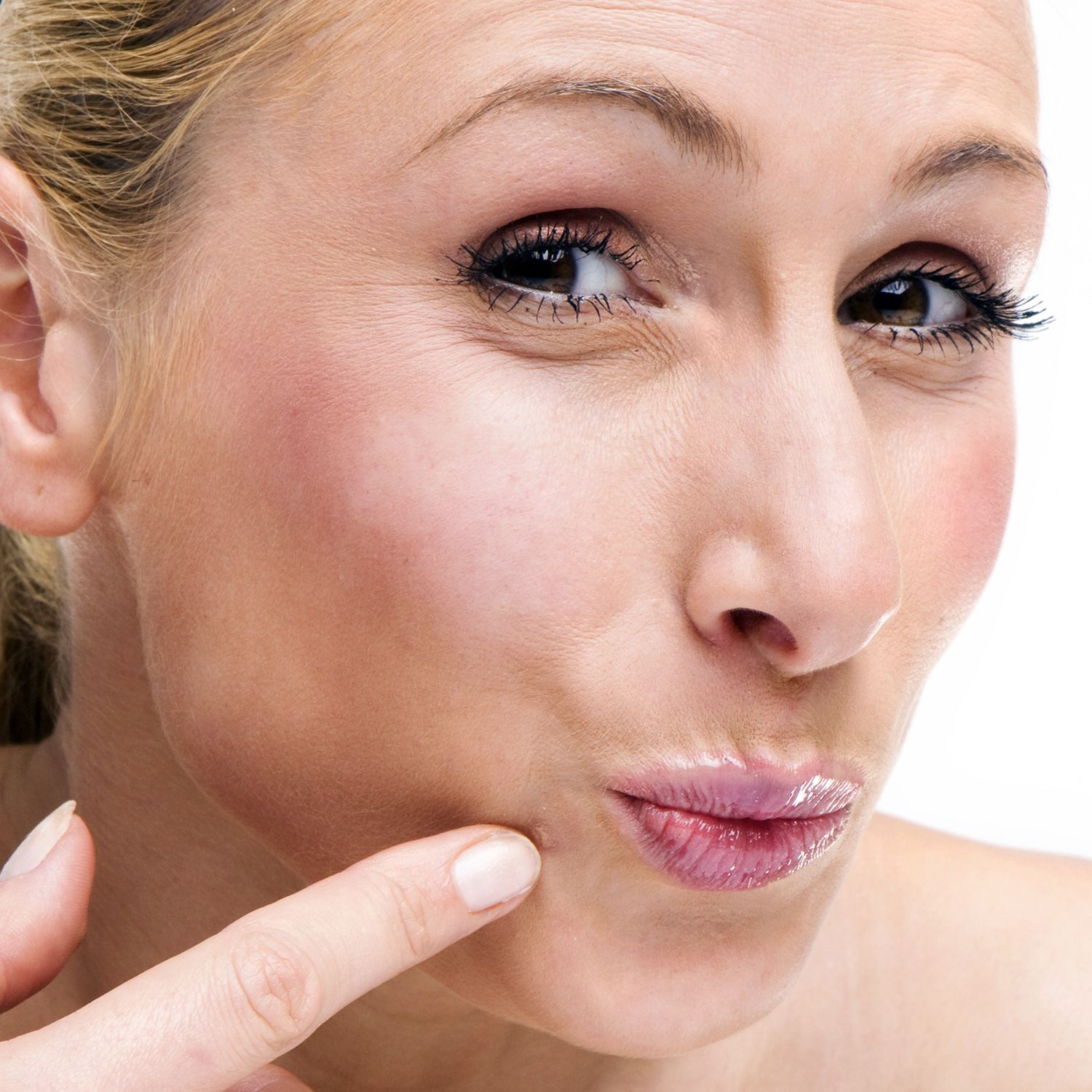 how to get rid of a wart on my face