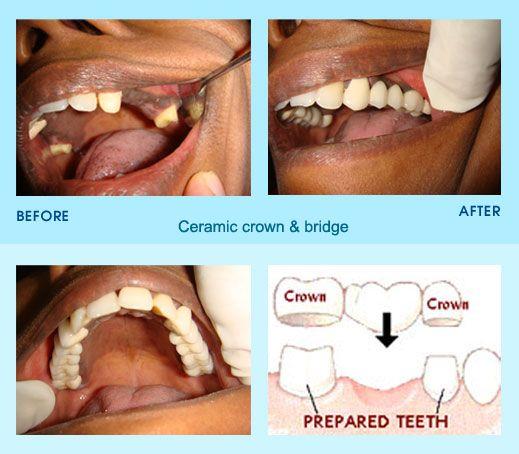 1bbdc27d2437781c19c408e998976865 - Dental Care At Venice Gardens Venice Fl