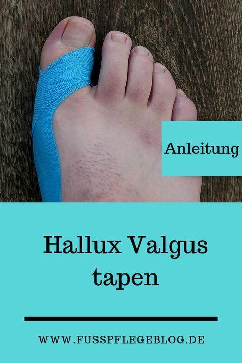 Hallux Valgus tapen | Fusspflegeblog