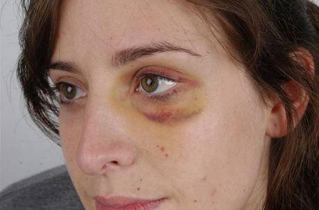 1bc603d8223fc4a47c3259fa162c1696 - How To Get Rid Of Bruises On Face Overnight
