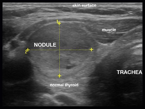 Image Result For Thyroid Nodules Thyroid Ultrasound Thyroid