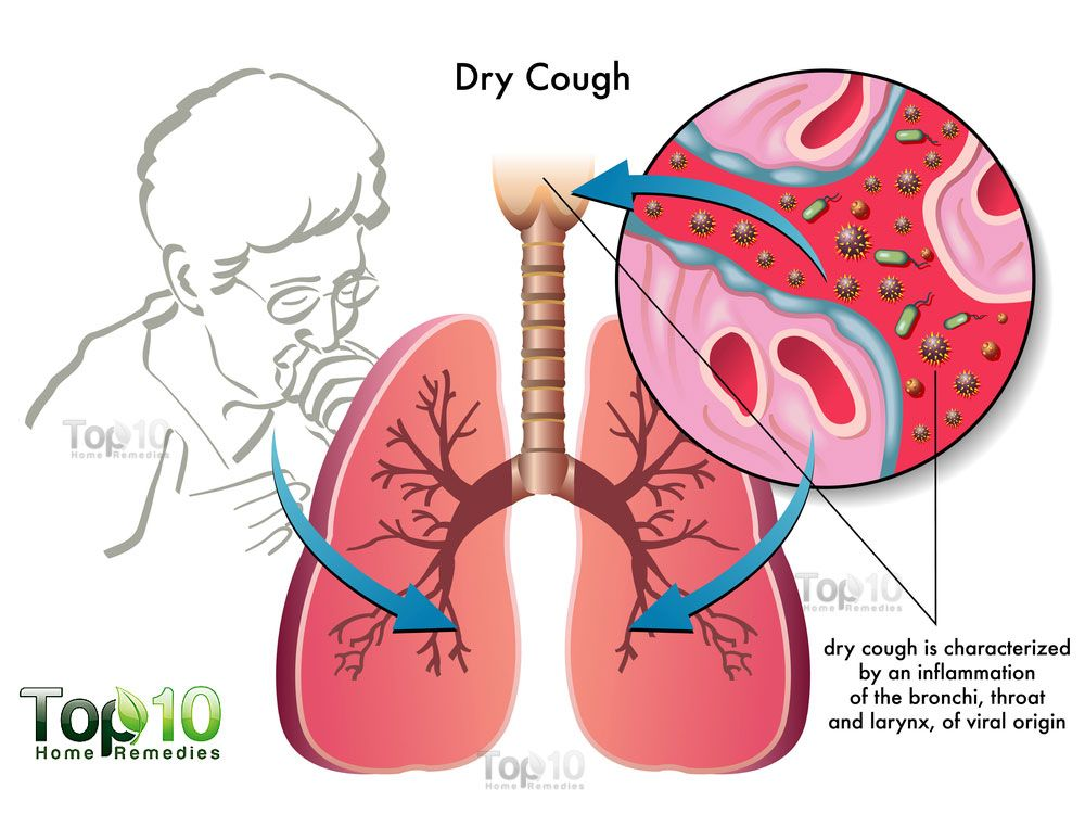 home remedies for cough | top 10 home remedies | dry cough, home remedy for  cough, cough remedies  pinterest