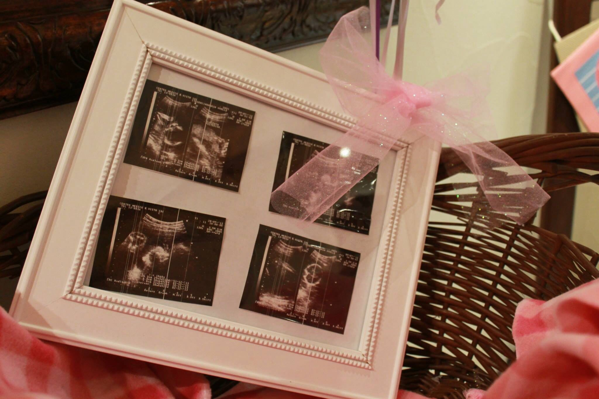 Ultrasonido en marco de fotos | Decoración baby shower | Pinterest