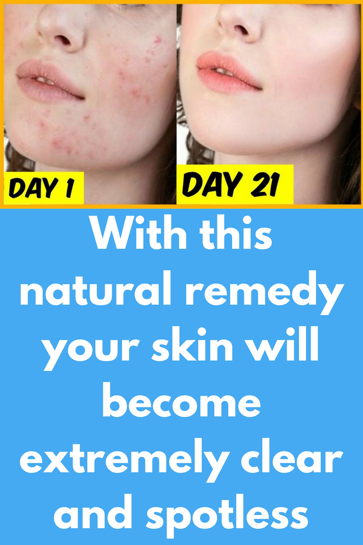 How To Get Rid Of Blackheads And Acne Marks
