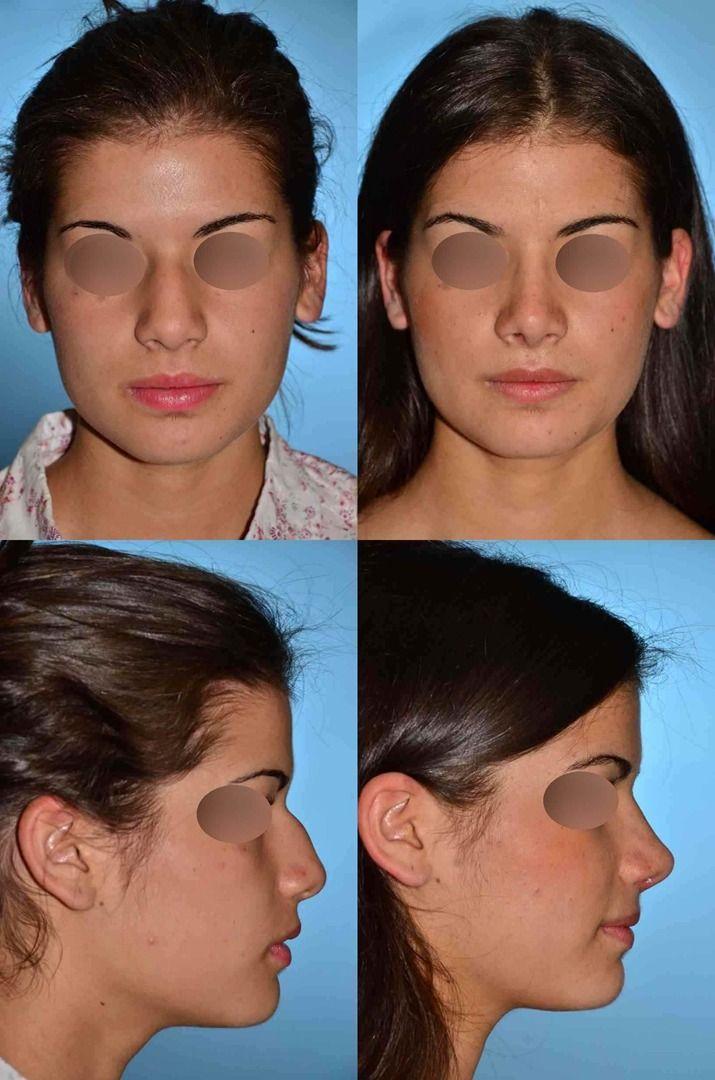 Bogota plastic surgery