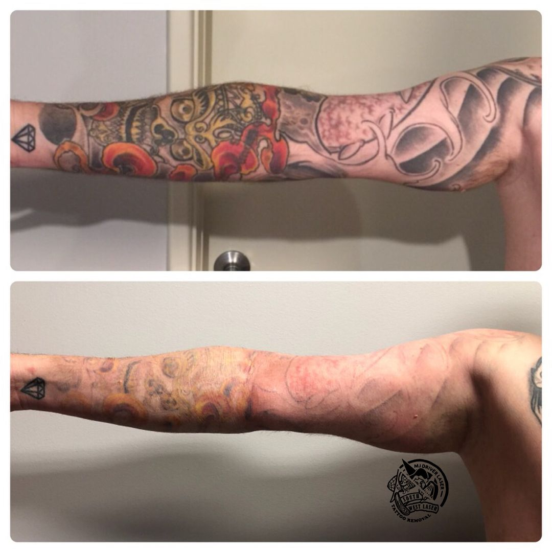 Tattoo Removal Aftermath How Many Sessions To Completely Remove Tattoo Can A New Tattoo Be Remo Tattoo Removal Cost Tattoo Removal Cream Eyebrow Tattoo Removal