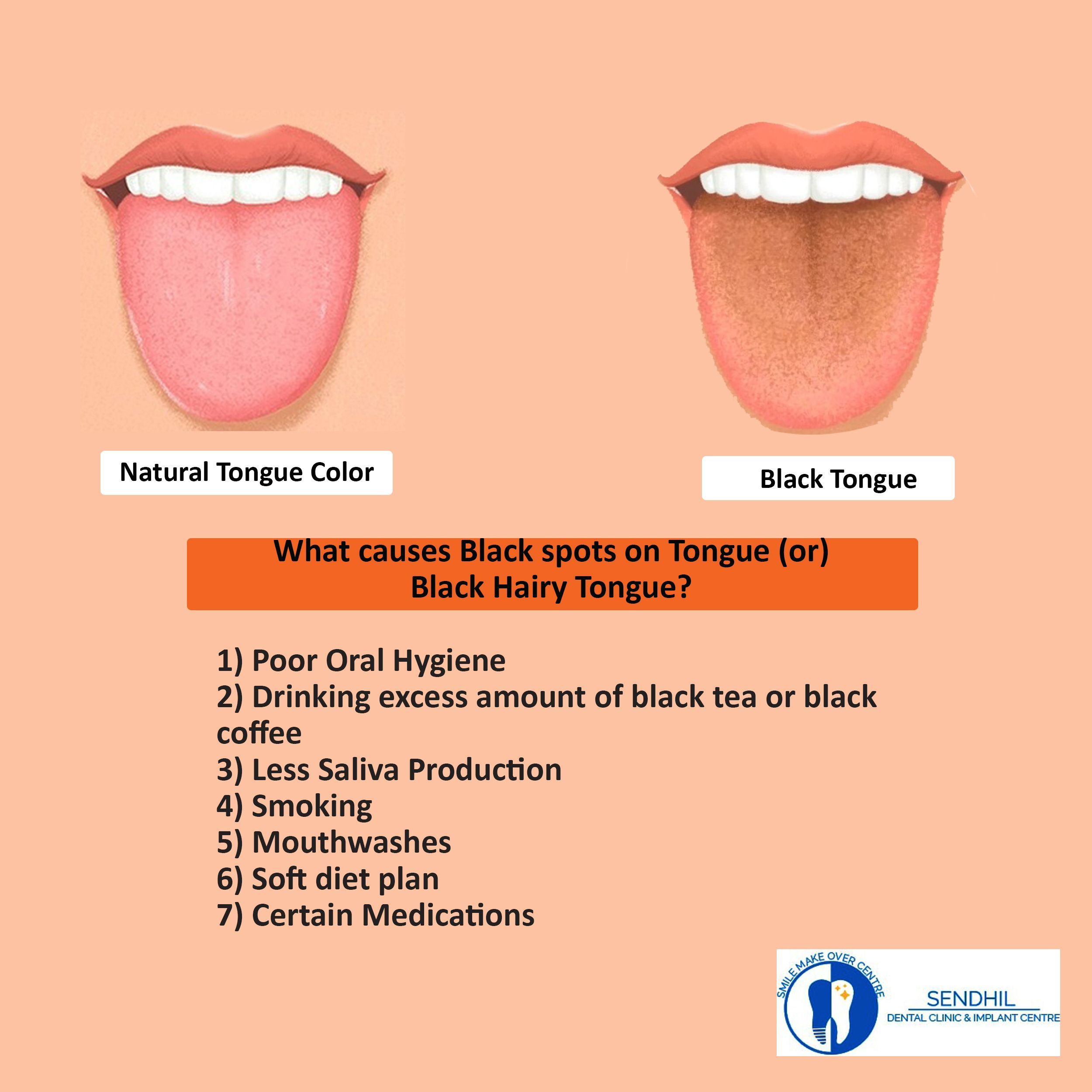 Black spots or black layer on a tongue is a harmless