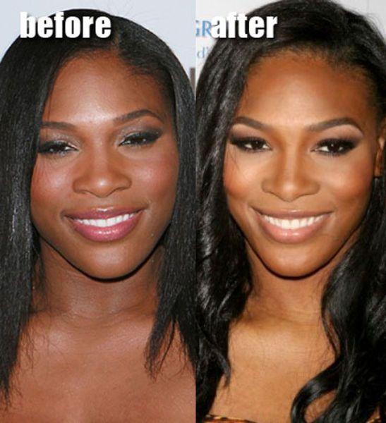 Black celebrity veneers