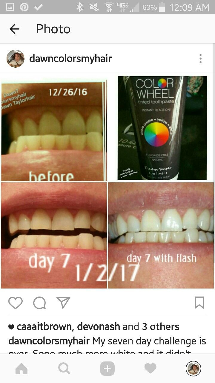 Color Wheel Toning Toothpaste Colorwheelproducts Com Teeth