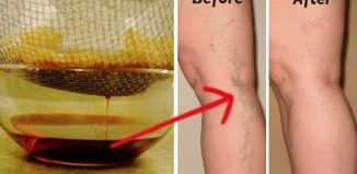 Homemade Garlic Oil to Reduce Inflammation in Varicose Veins