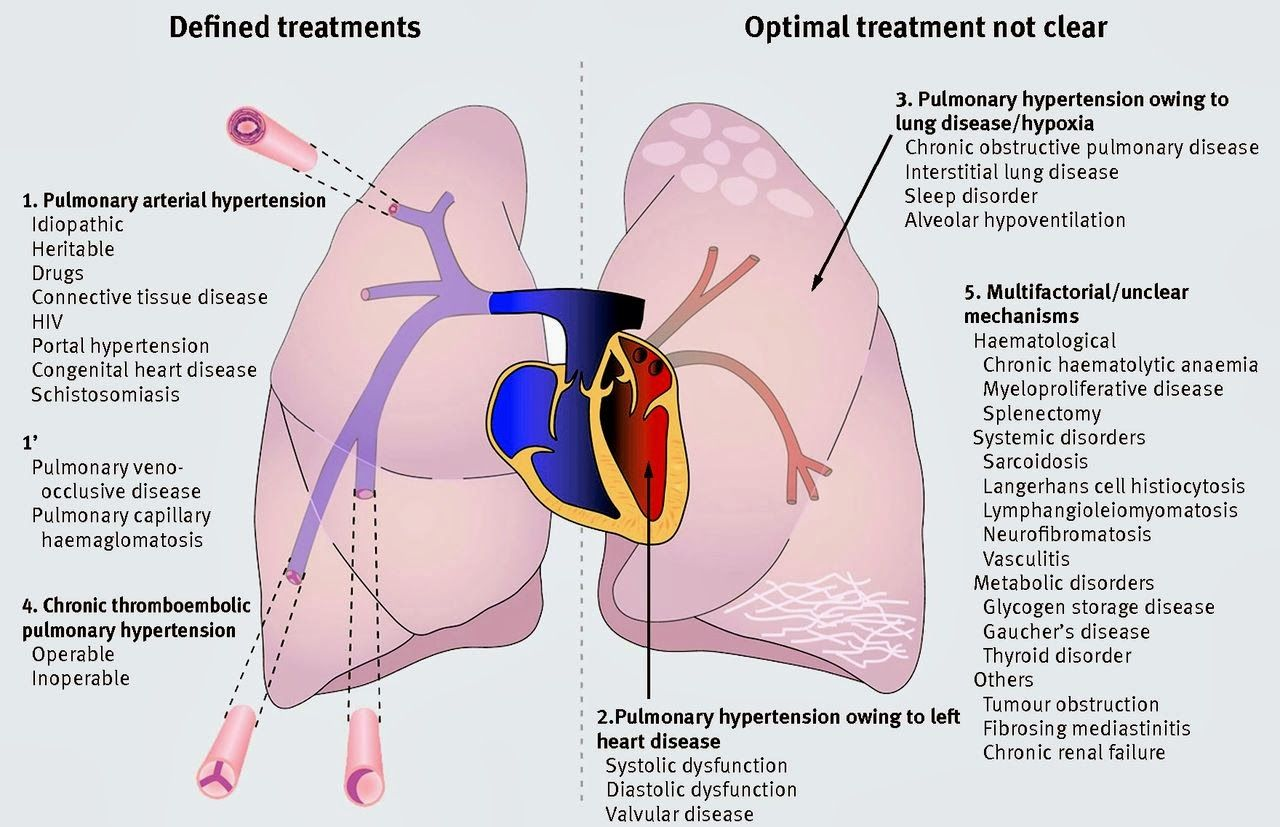 pulmonary hypertension is an increase of blood pressure in the