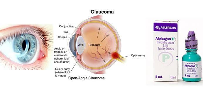 Hydroxychloroquine retinopathy symptoms