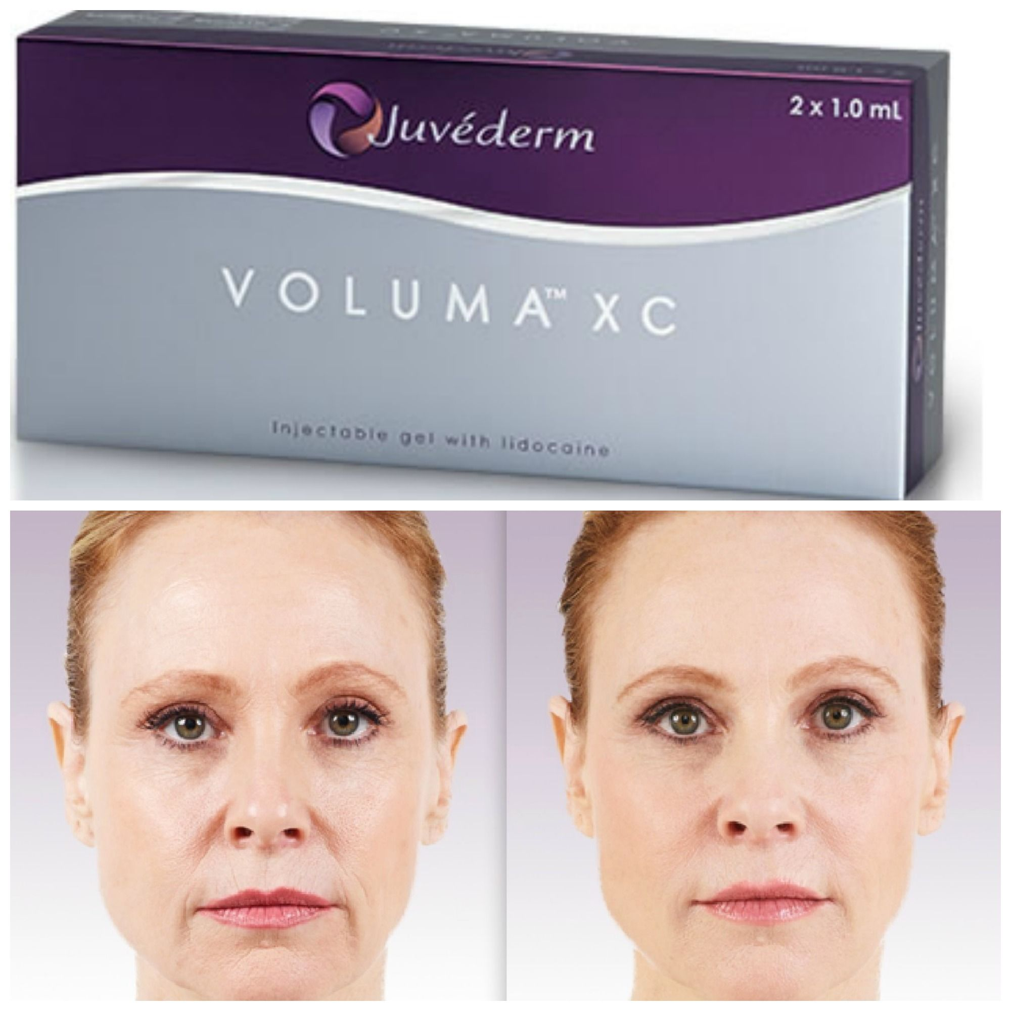 Juvederm Voluma Xc Injectable Instant Cheek Volume With Up To 2 Year Results Dermal Fillers Cheek Fillers Laser Skin Rejuvenation