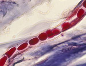 Little blood vessels are harder to monitor non-invasively (Image: Ed Reschke/Photolibrary/Getty)