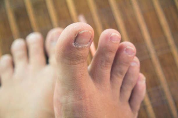 How To Get Rid Of Yellow Toenails With Vicks-Best Toenail Fungus ...