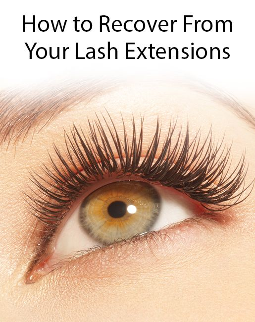How to Recover From Eyelash Extensions | Eyelashes falling ...