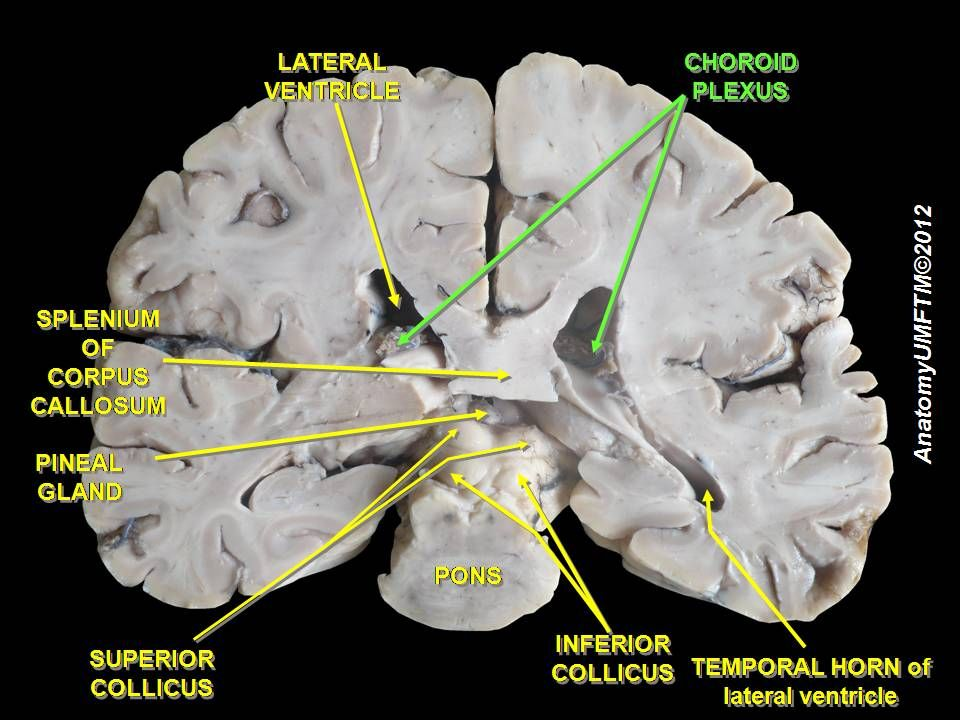 Slide2ff - Choroid plexus - Wikipedia, the free encyclopedia ...