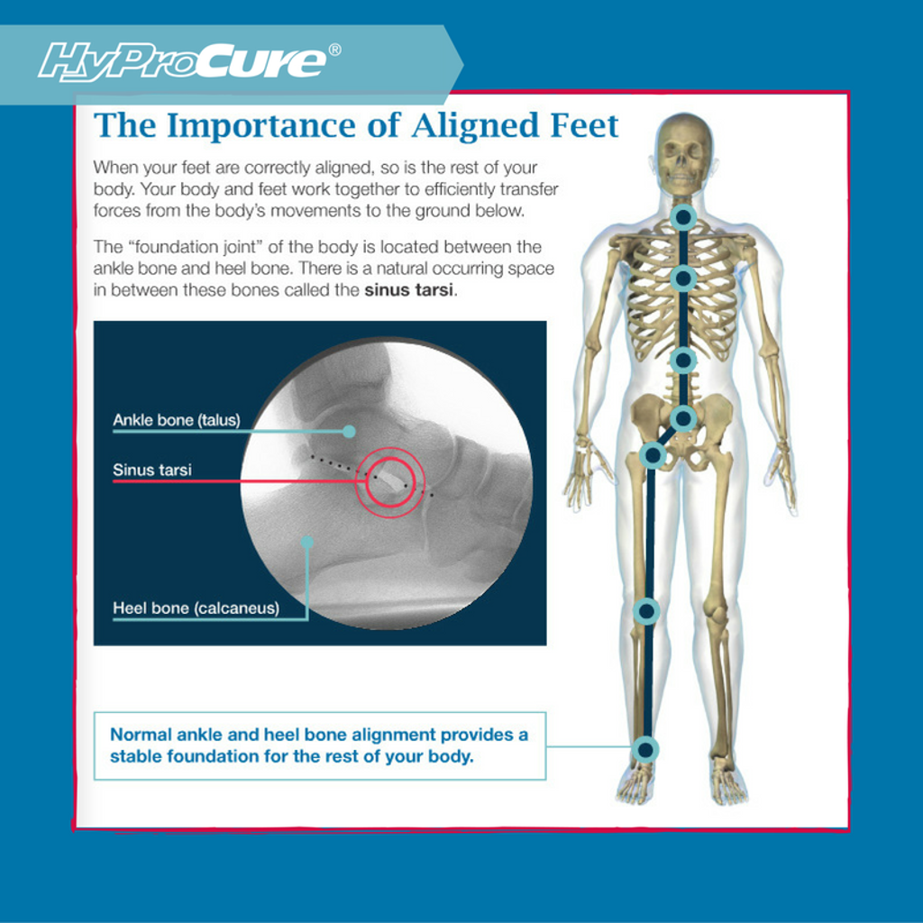 Misaligned feet are very common but often ignored. That\'s because ...
