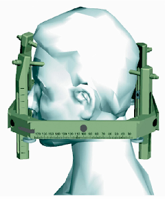 Stereotactic Head Frame