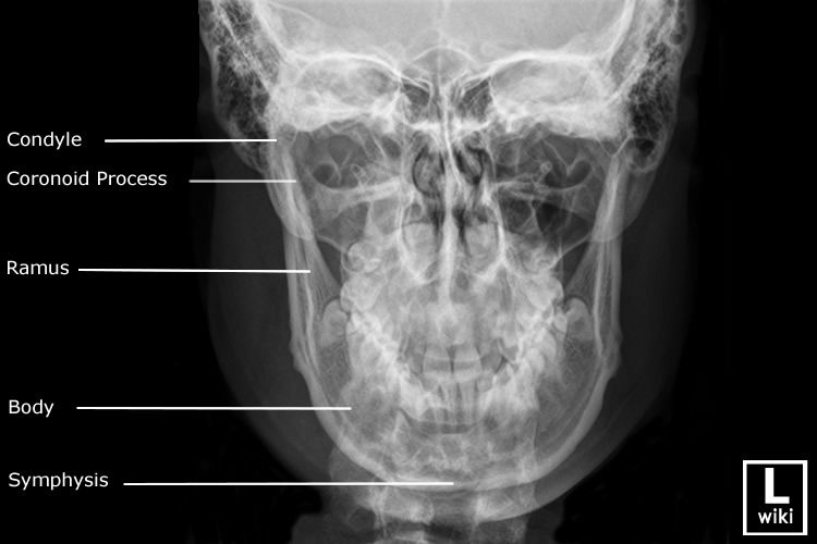 Radiographic Anatomy - Mandible PA | Facial bones ...