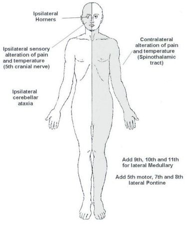 Wallenberg syndrome | Nurse stuff | Pinterest | Nurse stuff