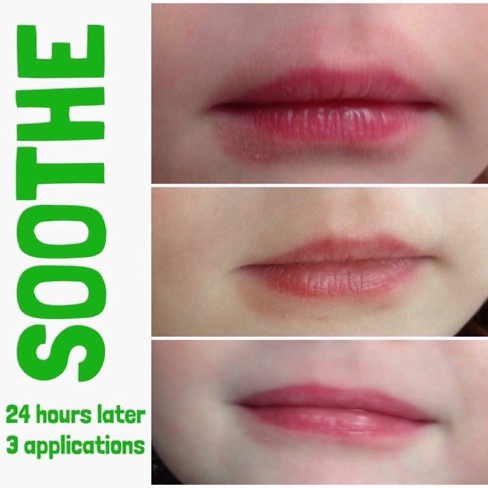 Is Your Child A Lip Licker Chapped Areas Around The Mouth Are No